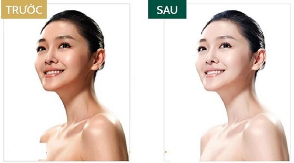 Sở hữu làn da hoàn hảo không tỳ vết cùng tinh chất vàng dưỡng da Collagen Luxury Gold