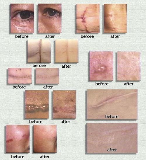 Tùy vào cơ địa mà scar rejuvasil điều trị sẹo lồi nhanh chậm khác nhau