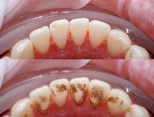 Eucryl Toothpaste nhanh chóng len lỏi vào sâu kẽ răng giúp loại bỏ mảng bám, vết ố vàng dễ dàng