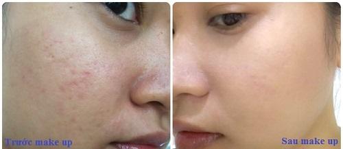 Kem nền NEUTROGENA Skin Clearing Oil  che lấp mọi khuyết điểm do mụn, sẹo, vết nhăn, vết thâm