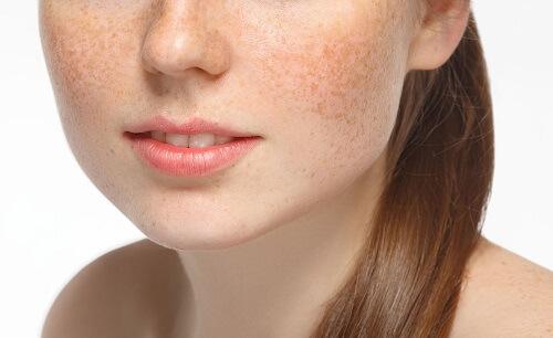 Làn da đầy vết thâm nám khiến bạn mất tự tin và lo lắng