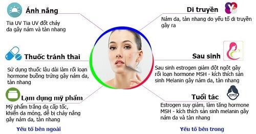 Có rất nhiều nguyên nhân gây nám da từ yếu tố bên trong lần tác động bên ngoài