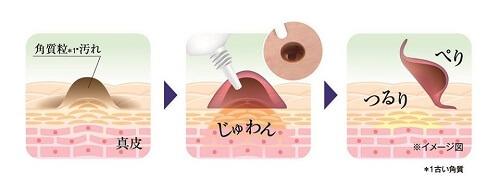 """Những đốm mụn thịt, nốt ruồi sẽ """"được"""" kem Tsubuporon Night Patch loại bỏ đơn giản"""