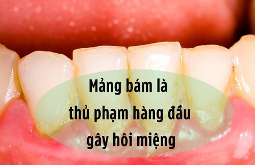 Răng ố vàng, mảng bám, có mùi khiến bạn mất tự tin và luôn lo lắng trong cuộc sống