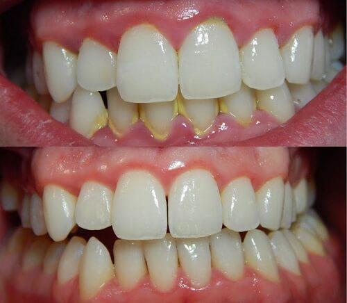 Mảng bám, cao răng sẽ được loại bỏ dễ dàng hơn chỉ sau vài ngày sử dụng nước súc miệng Propolinse