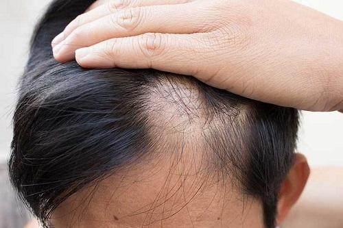 Thảo dược Elmoss Hair phục hồi các nang tóc yếu, hỗ trợ ngăn ngừa tình trạng hói đầu