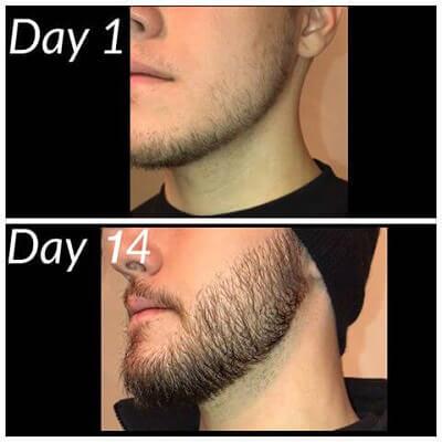 Thuốc mọc râu Minoxidil 5 đem lại hiệu quả chỉ sau 1 thời gian ngắn