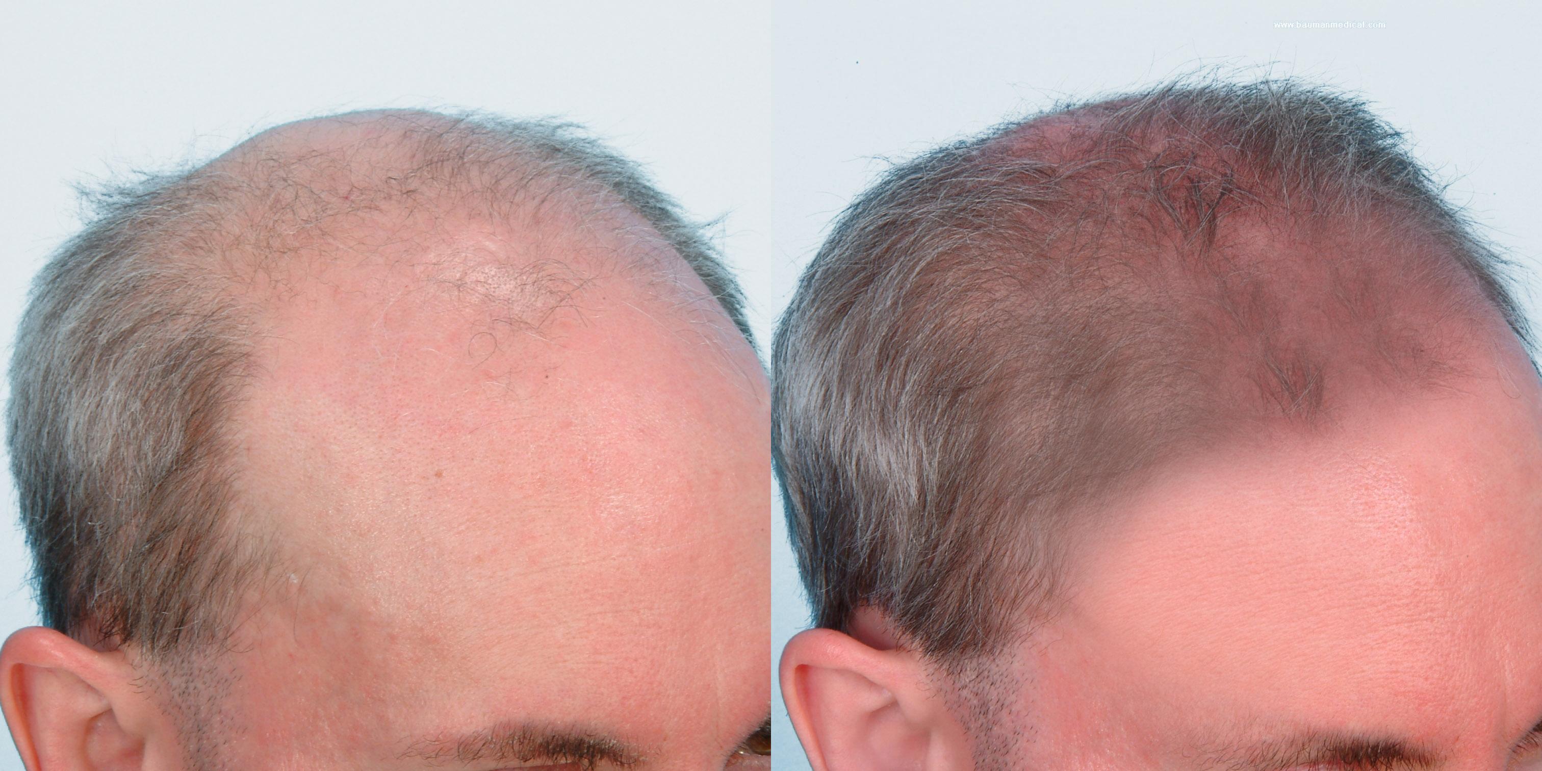 hình ảnh tinh chất hà thủ ô kích thích mọc tóc kim quan
